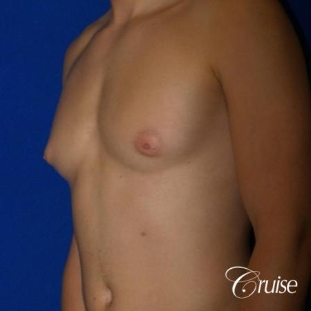 Mild Gynecomastia -Areola Incision - Before Image 2