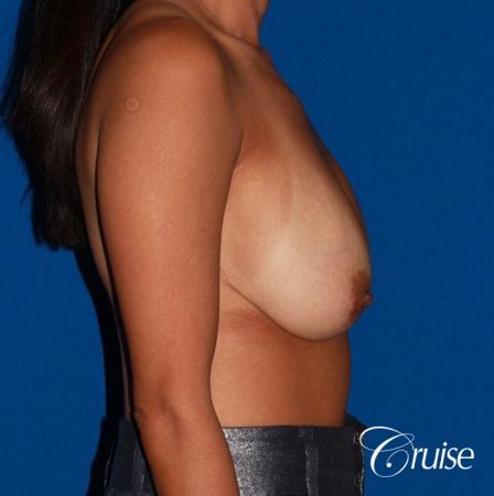 unhappy with her shape she had a breast revsion and lift - Before and After Image 3