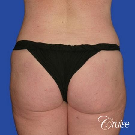 best pictures of liposuction abdomen with skin laxity -  After Image 1