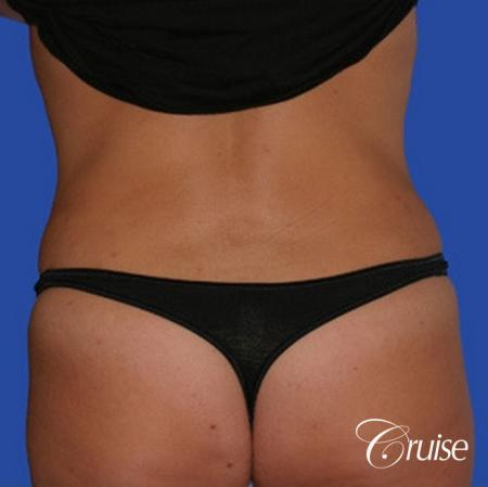 pictures of love handle liposuction -  After Image 1