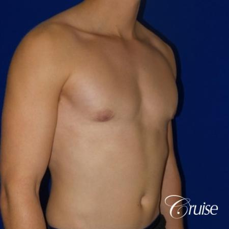 Teenage Gynecomastia -Areola Incision - After Image 2