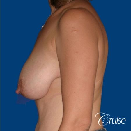 best breast reduction no implants - Before Image 2