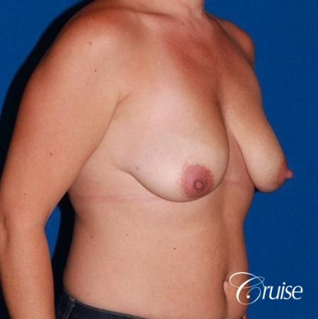 best results for breast lift anchor with saline implants - Before Image 4