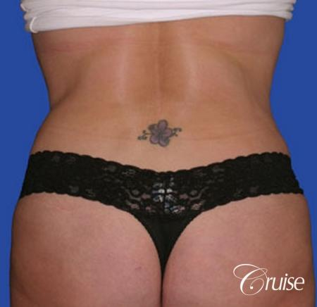 best dramatic flank liposuction pictures -  After Image 3