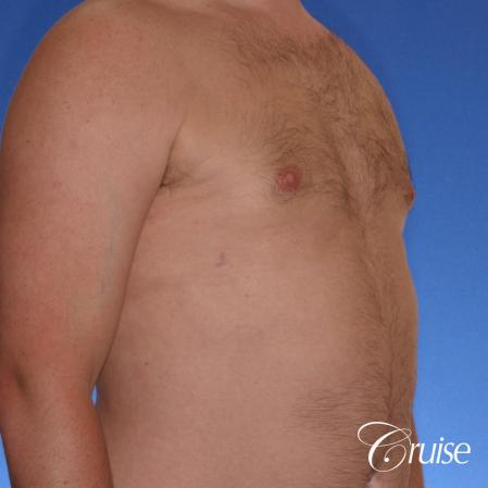 male adult with gynecomastia -  After Image 3