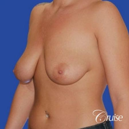 best before and after of silicone breast lift anchor in Newport Beach - Before Image 2