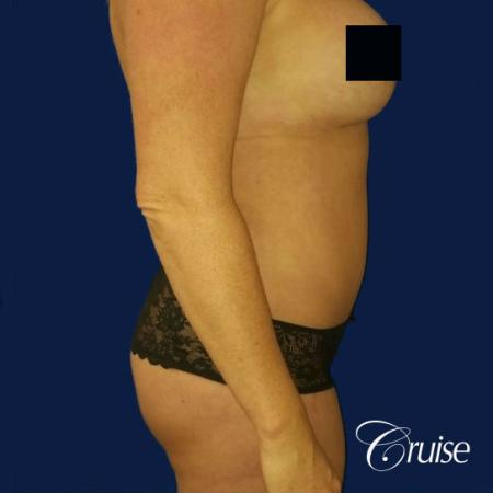 Best tummy tucks dr cruise - After Image 4