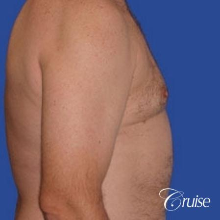 chest liposuction on adult -  After Image 3