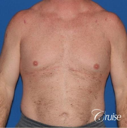 extended pa incision on gynecomastia patient - Before Image 1