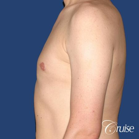 moderate gynecomastia on adult with donut lift scar -  After Image 2