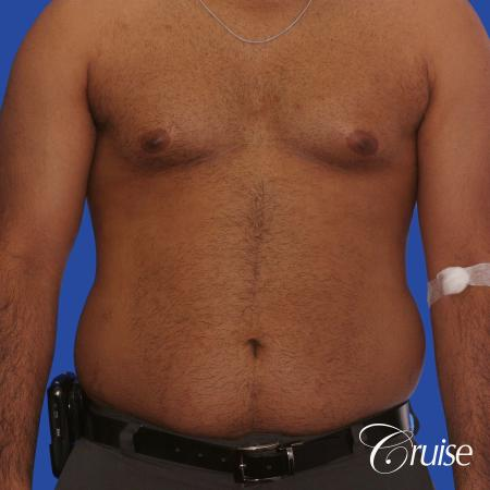 young adult with gyno gets gynecomastia surgery - Before Image 1