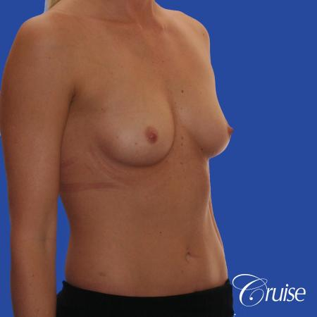 Breast Augmentation - Before Image 3