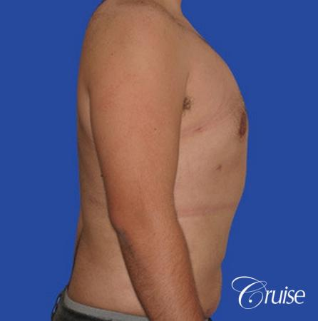male liposuction abdomen flanks with Gynecomastia -  After Image 5