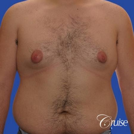 moderate gynecomastia with pointy nipples male - Before Image 1