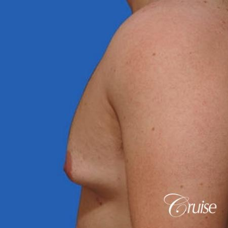 mild gynecomastia with puffy nipple on adult - Before and After Image 2