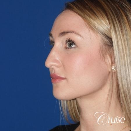 best rhinoplasty with natural results - Before Image 2