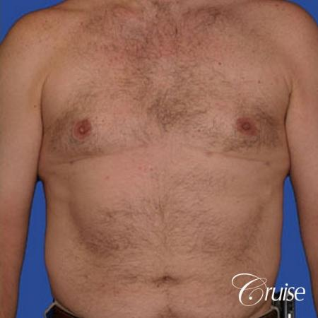 chest liposuction on adult -  After Image 1
