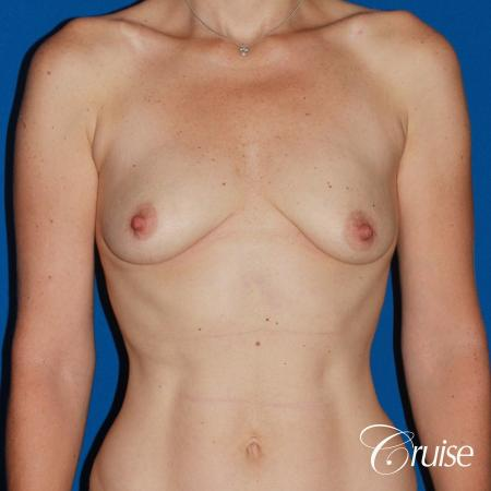 young woman with silicone breast lift anchor - Before Image 1