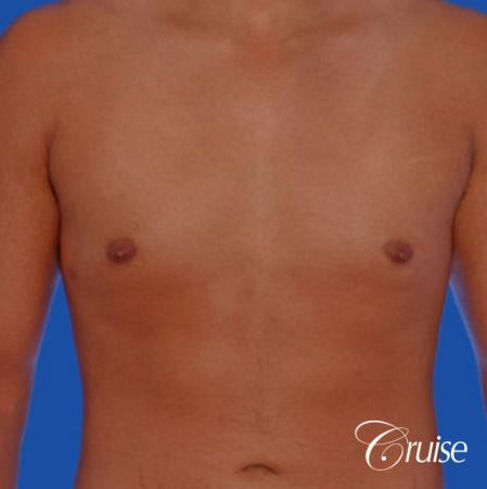 26yr old with mild gynecomastia -  After Image 1