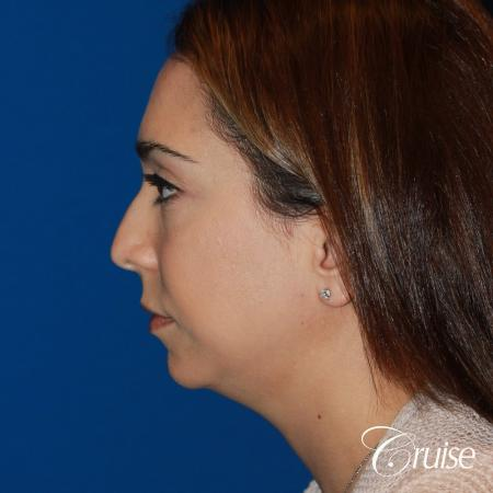 best medium chin implant on young patient - Before Image 2