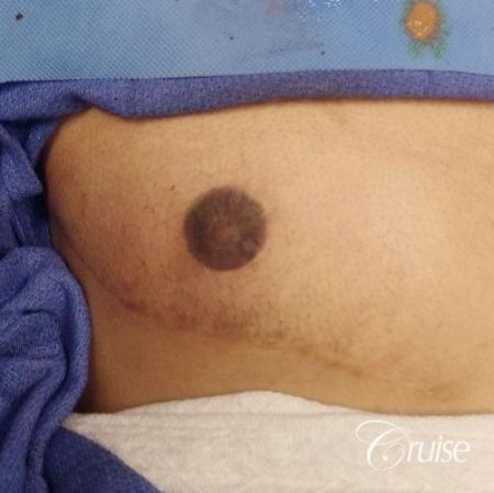Medical Tattooing: Patient 5 - After Image
