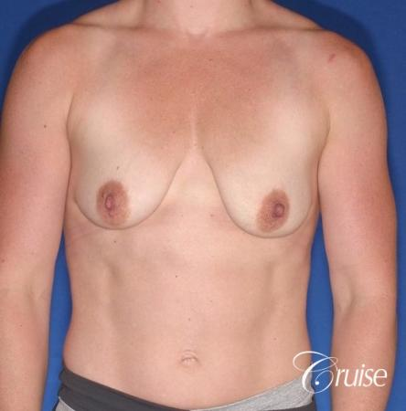 best breast lift anchor on athletic body type - Before Image 1
