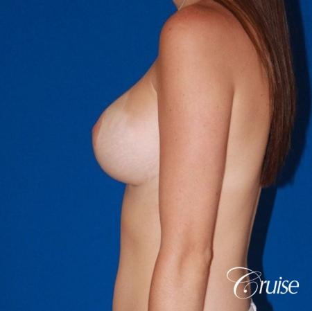 best saline breast reduction on large breast -  After Image 2