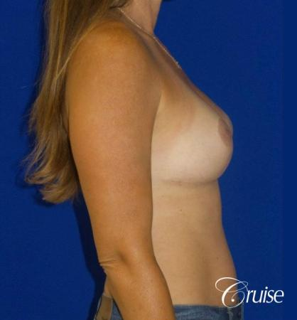 Breast Revision: Patient 2 - After 3
