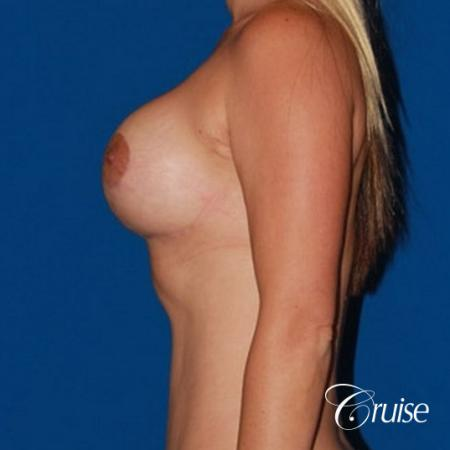 best breast lift anchor with saline implants -  After Image 2