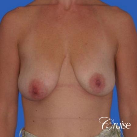 best breast lift anchor with silicone implants - Before Image 1