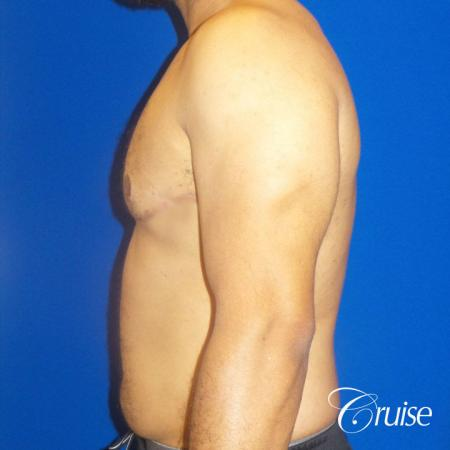Best gynecomastia specialist in united states -  After Image 3
