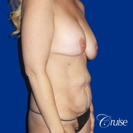 Circumferential Tummy Tuck, Breast Lift Anchor W/ Silicone - Before and After Image 4
