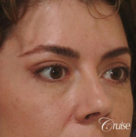 blepharoplasty specialist -  After Image 3