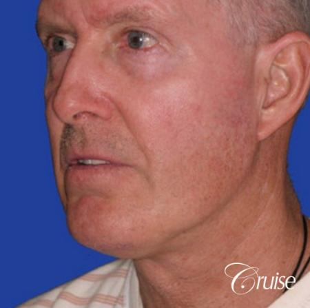 62 year old with chin implant and neck lift - After Image 2