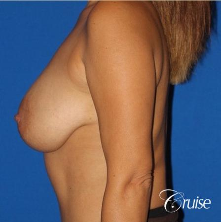 best saline breast lift with 470cc implants - Before Image 2