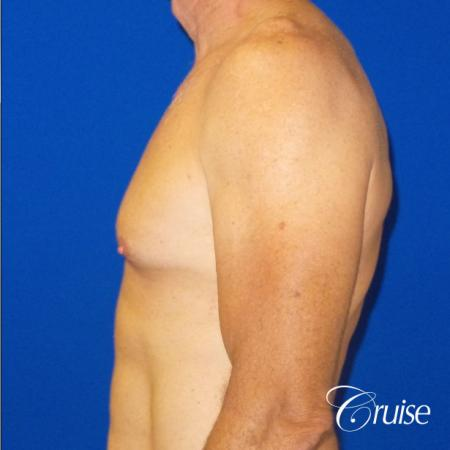 Top Gynecomastia surgeons - Before Image 3
