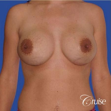 mini tummy tuck with silicone breast revision -  After Image 1