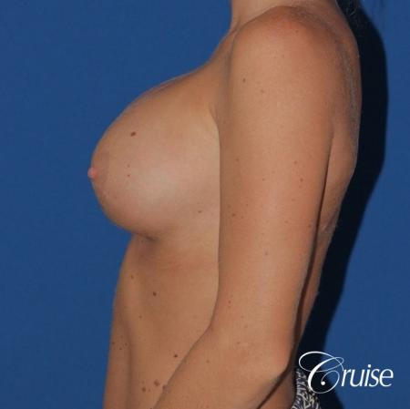 breast reconstruction better cleavage and capsulectomy -  After Image 2