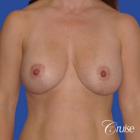 best revision to correct large breast - After Image