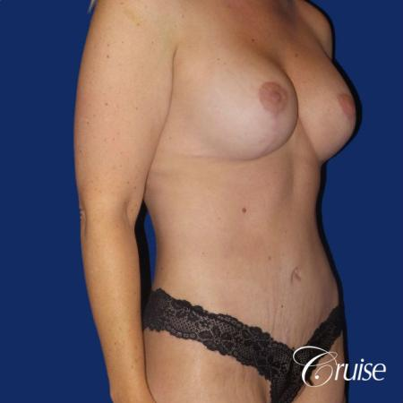 Circumferential Tummy Tuck, Breast Lift Anchor W/ Silicone - After Image 4