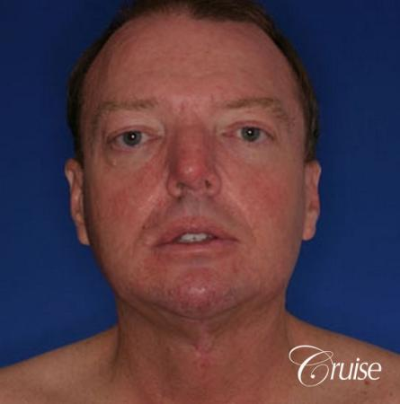 best male chin implant with large square jaw -  After Image 1