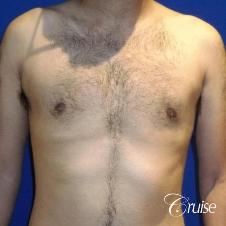 Moderate Gynecomastia Areola Incision - After Image 1