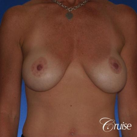Best breast revision for low implants - Before Image 1