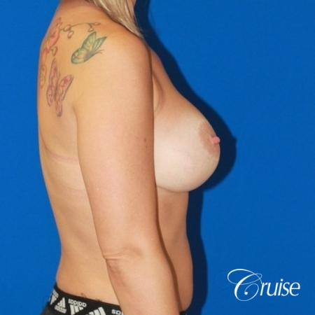 best before and after of breast lift anchor with high profile saline augmentation -  After Image 5