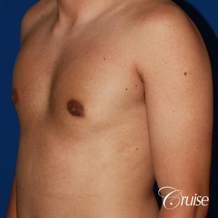 mild gynecomastia before and after with puffy nipple -  After Image 3