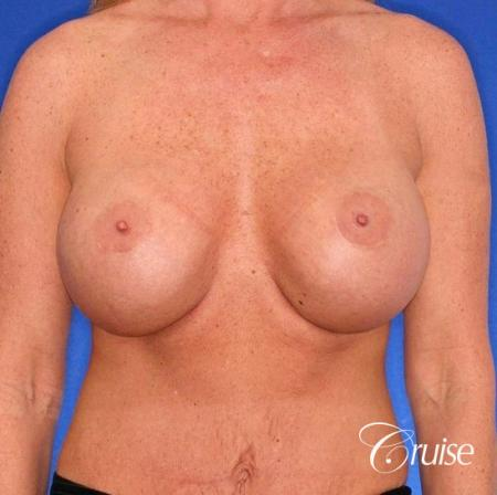 best breast lift anchor photos with HP 475cc implants - Before Image 1