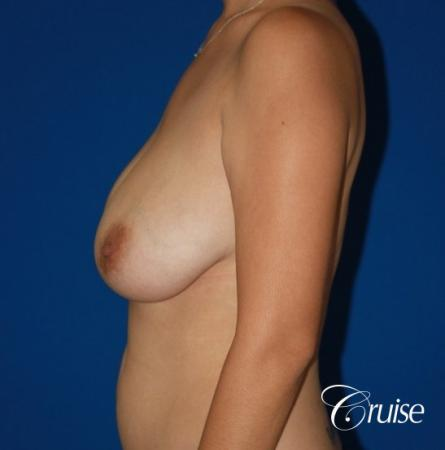 best results for breast lift anchor with saline implanta - Before Image 2