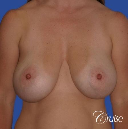 best revision to correct large breast - Before Image
