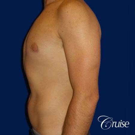 Mild Gynecomastia- Areola Incision - After Image 3