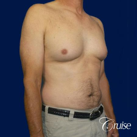 Moderate Gynecomastia Pedicle - Before and After Image 4